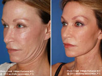 best blepharoplasty surgeon