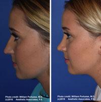 Facial Plastic Surgeon Seattle Washington - Rhinoplasty