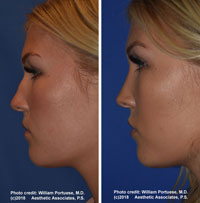 best nose plastic surgeon