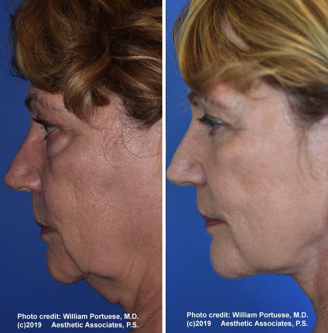 facelift-chin-bleph-78-b