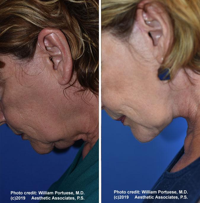 facelift-chin-bleph-78-f