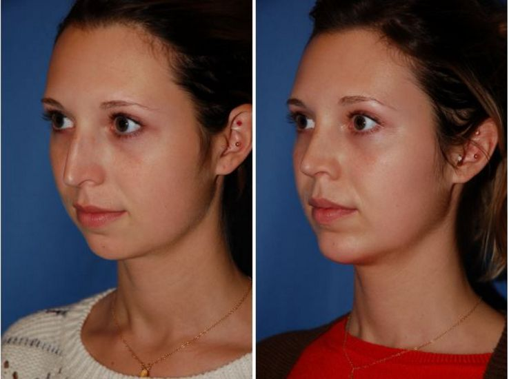 Botox before and after celebrity cosmetic surgery