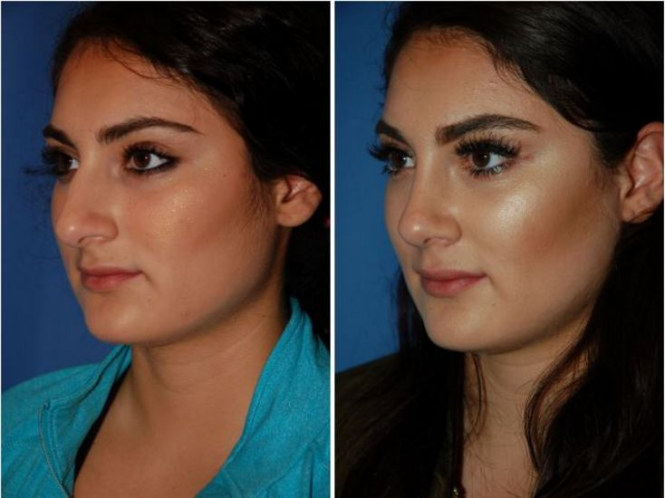 Crooked Nasal Bones Before and After Photo Gallery