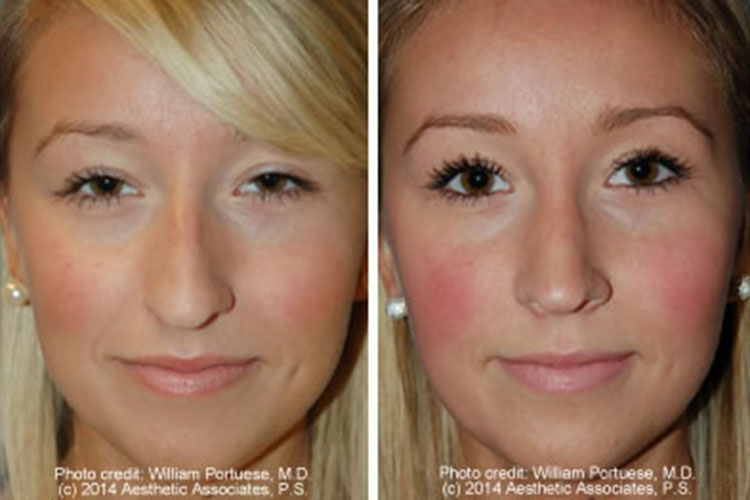 Rhinoplasty Before And After Narrow Nasal Bones Bef...