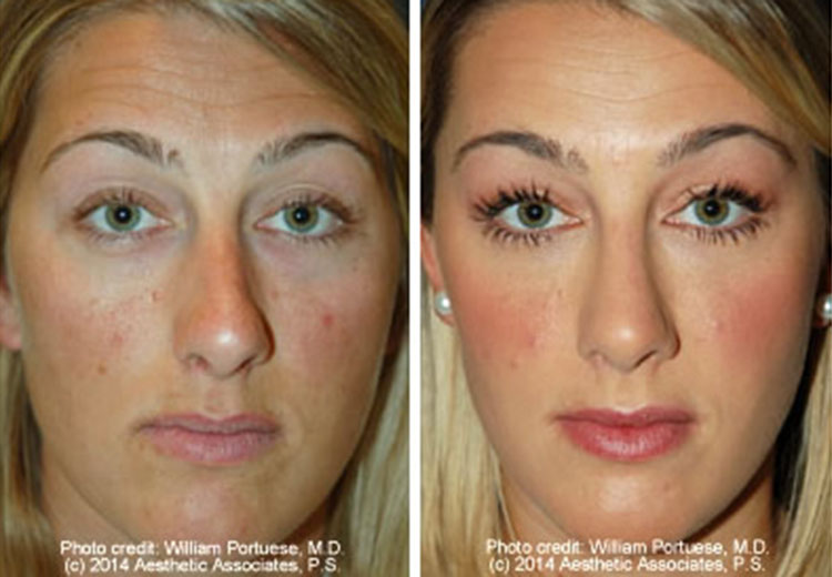 Rhinoplasty before and after pictures celebrity homes