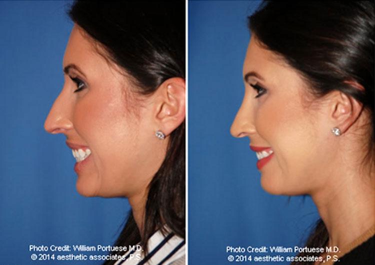 Asymmetrical Nose Surgery - Crooked Nose - Photos