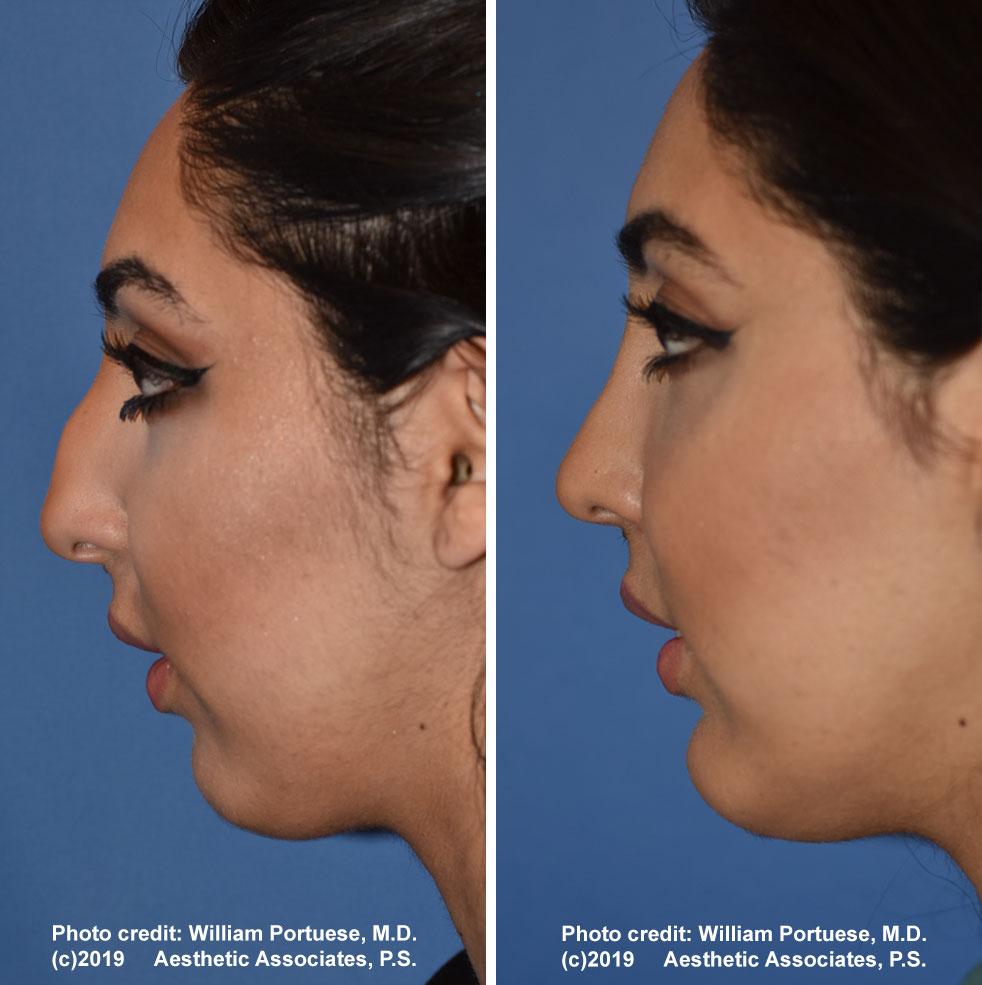 rhinoplasty-176-a