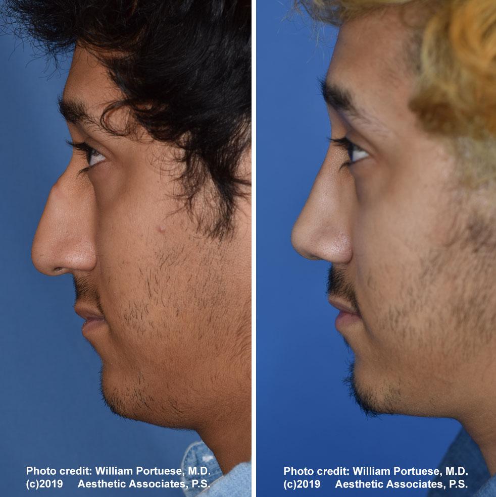 rhinoplasty-177-a