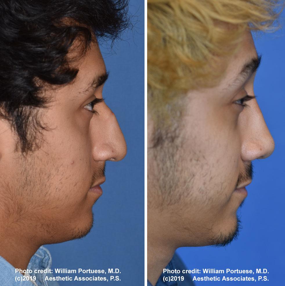 rhinoplasty-177-e