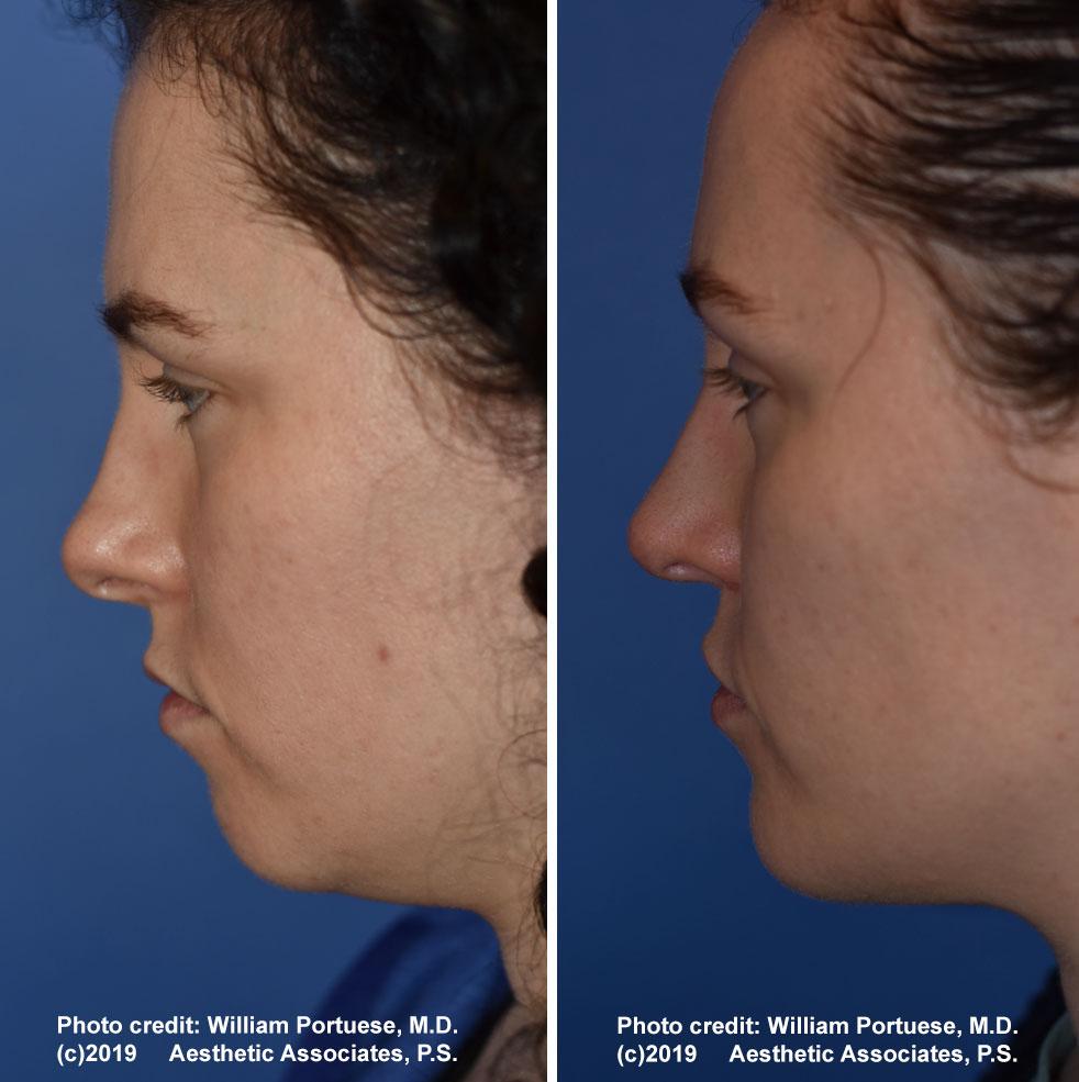rhinoplasty-178-a