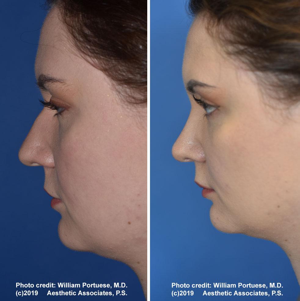 rhinoplasty-179-a