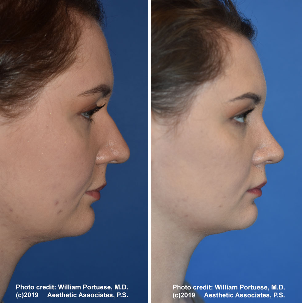 rhinoplasty-179-e