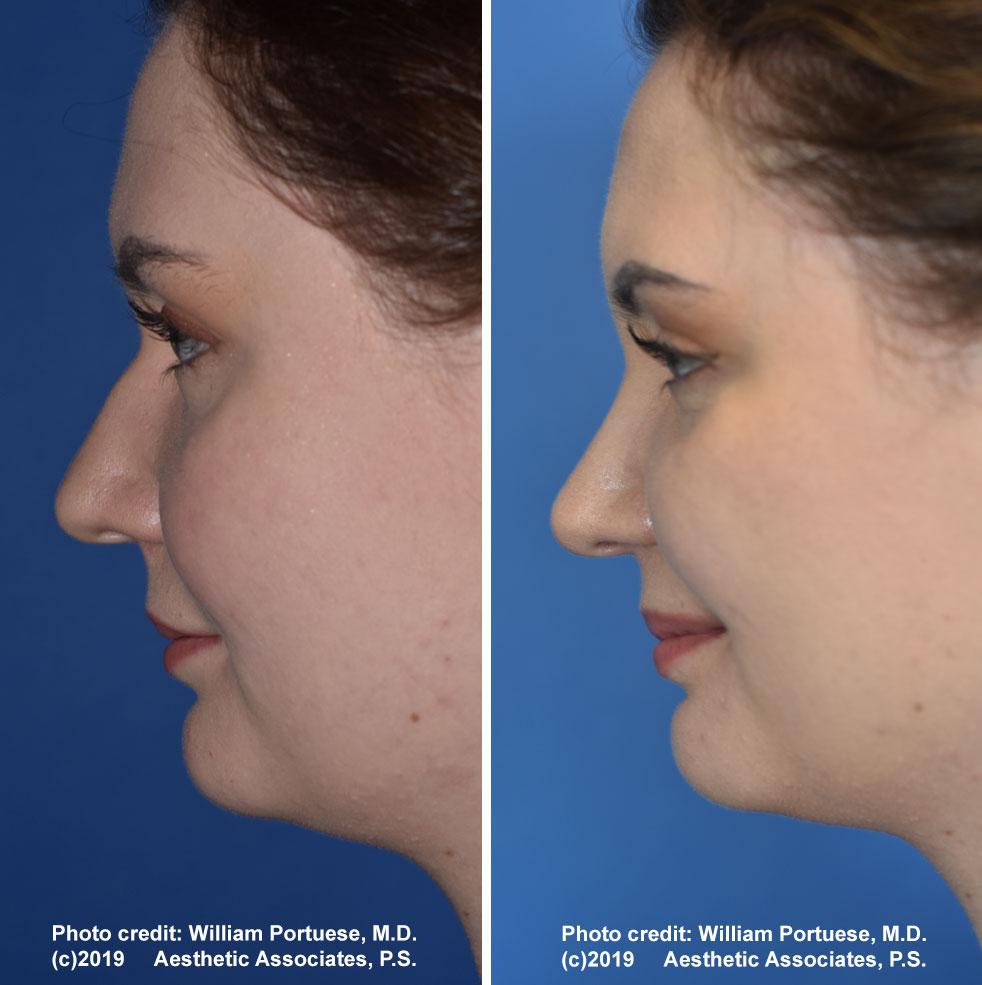 rhinoplasty-179-f