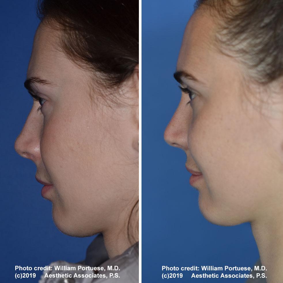 rhinoplasty-180-a