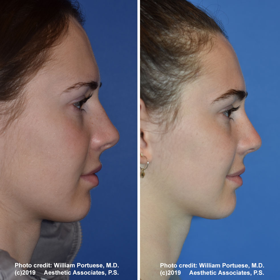 rhinoplasty-180-e