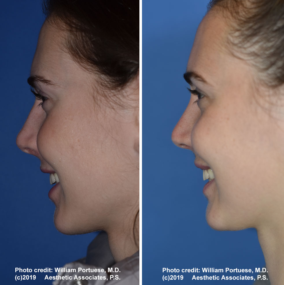 rhinoplasty-180-f