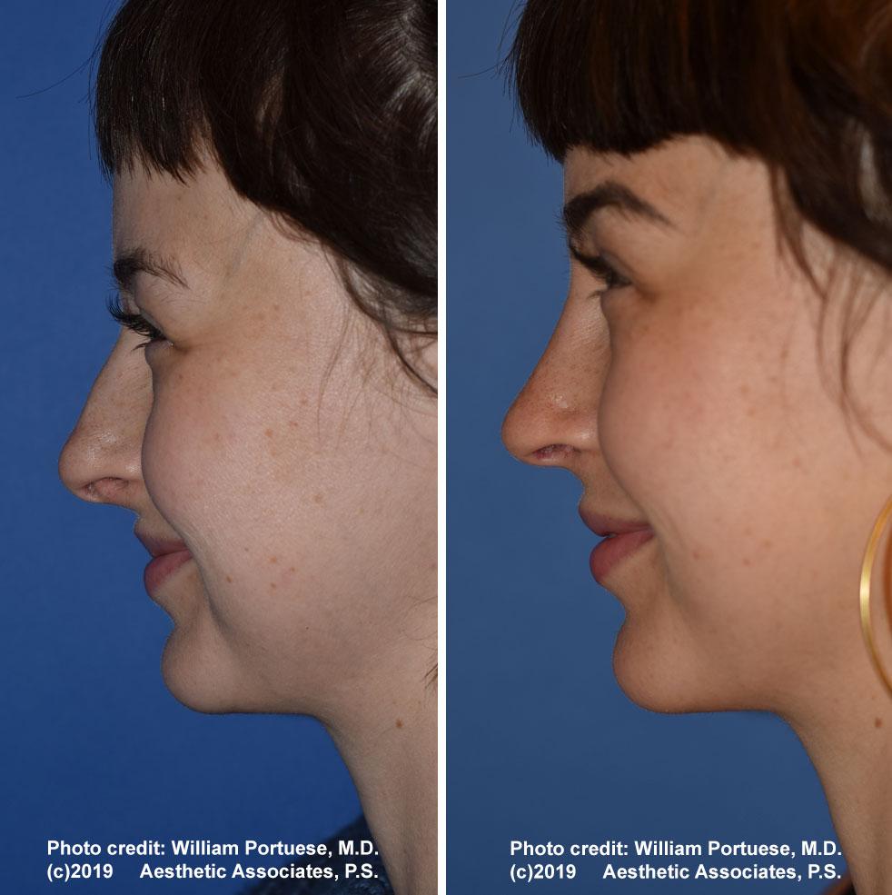 rhinoplasty-181-f