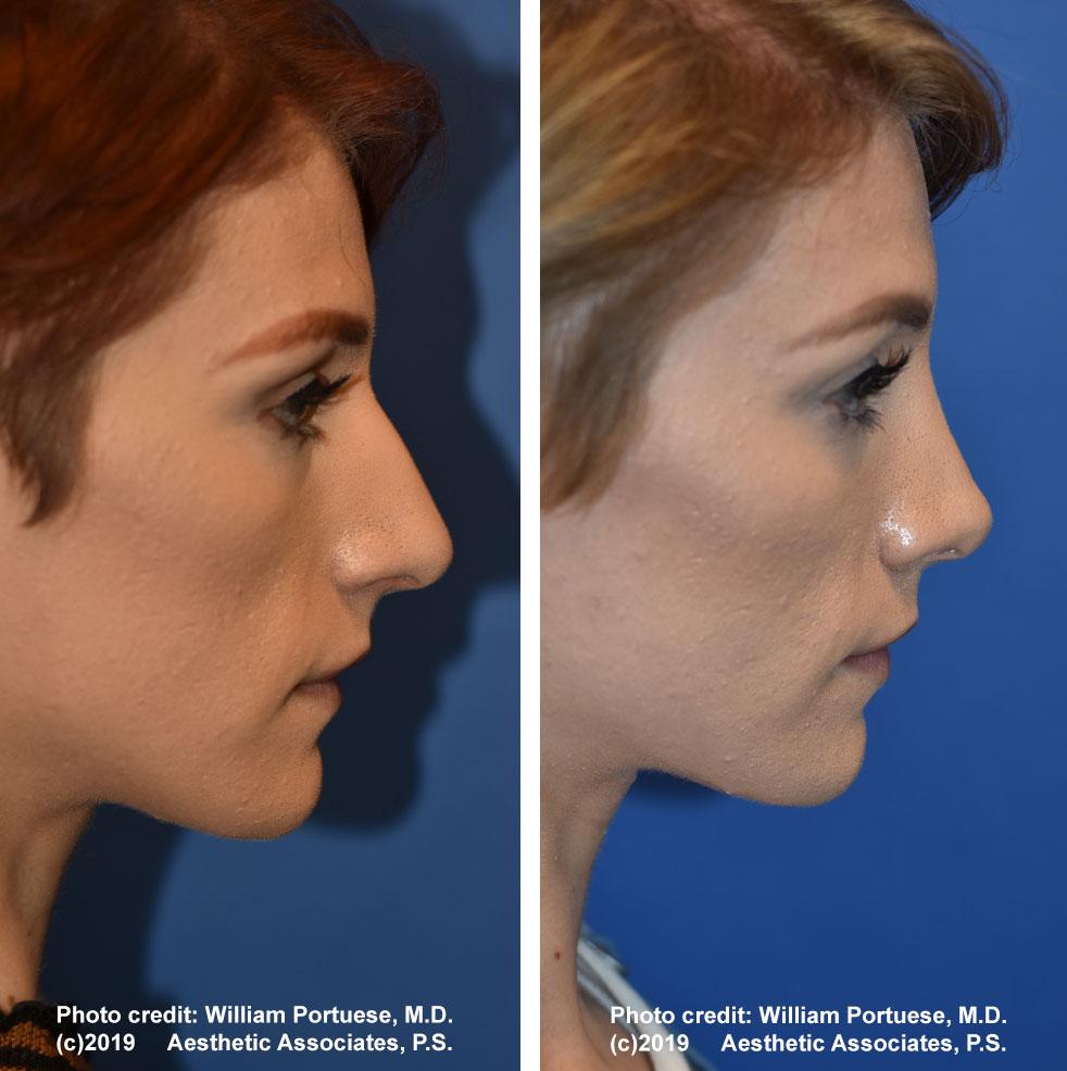 rhinoplasty-183-e