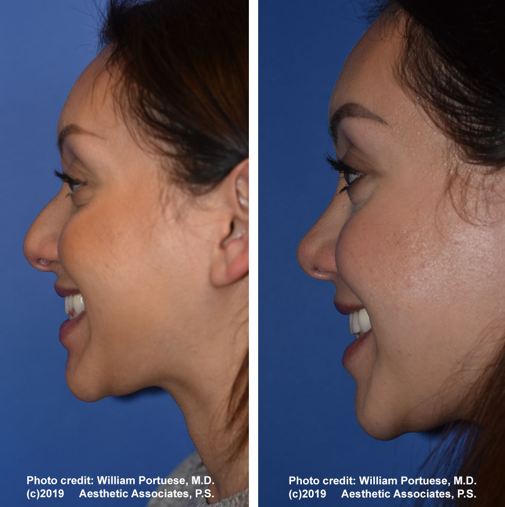 rhinoplasty-61719-11a