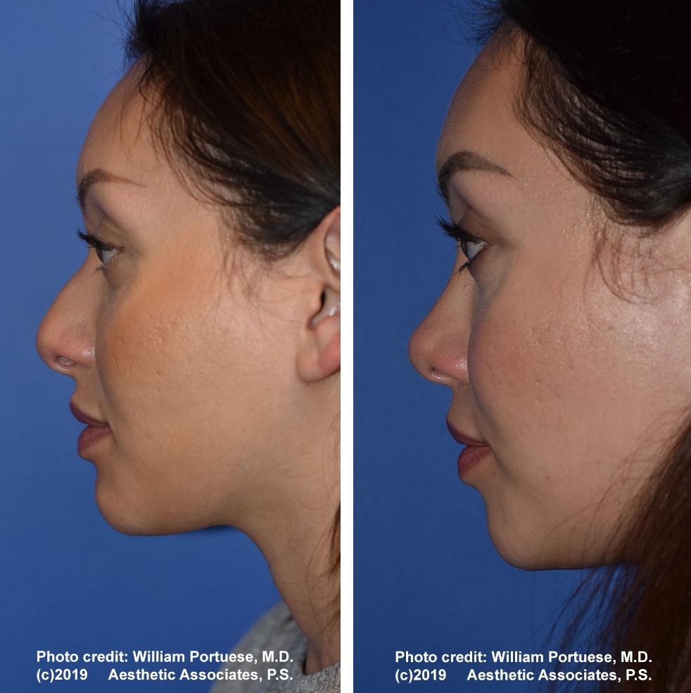 rhinoplasty-61719-11d