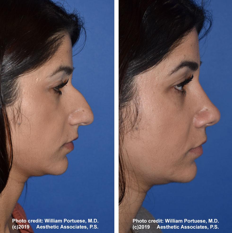 rhinoplasty-61719-12e