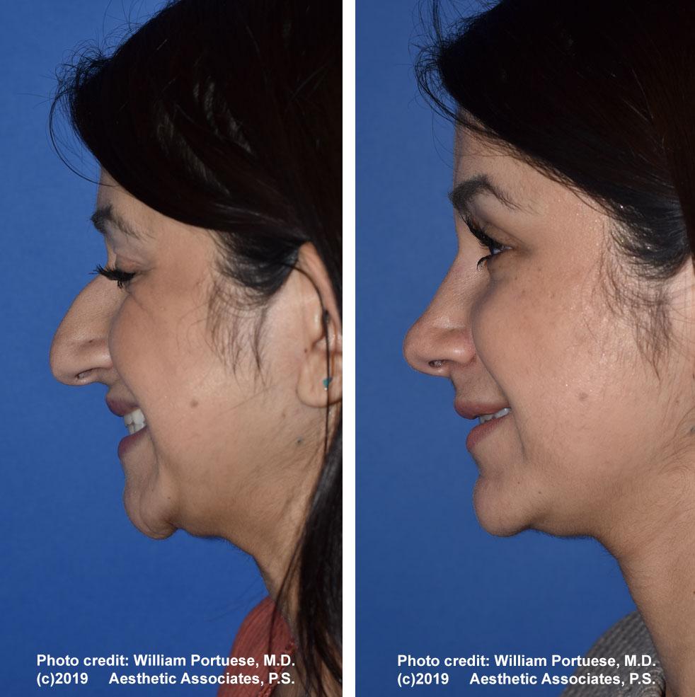 rhinoplasty-61719-12f