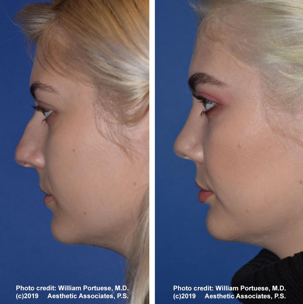rhinoplasty-61719-13b