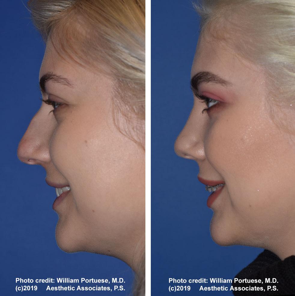 rhinoplasty-61719-13f