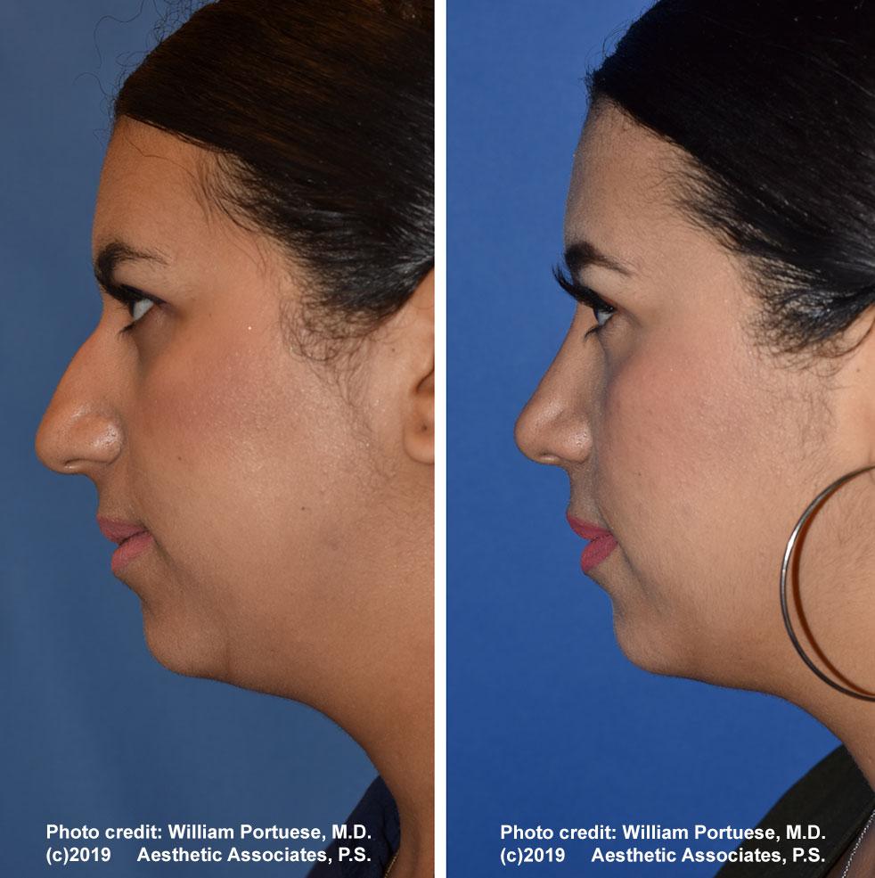 rhinoplasty-61719-14a