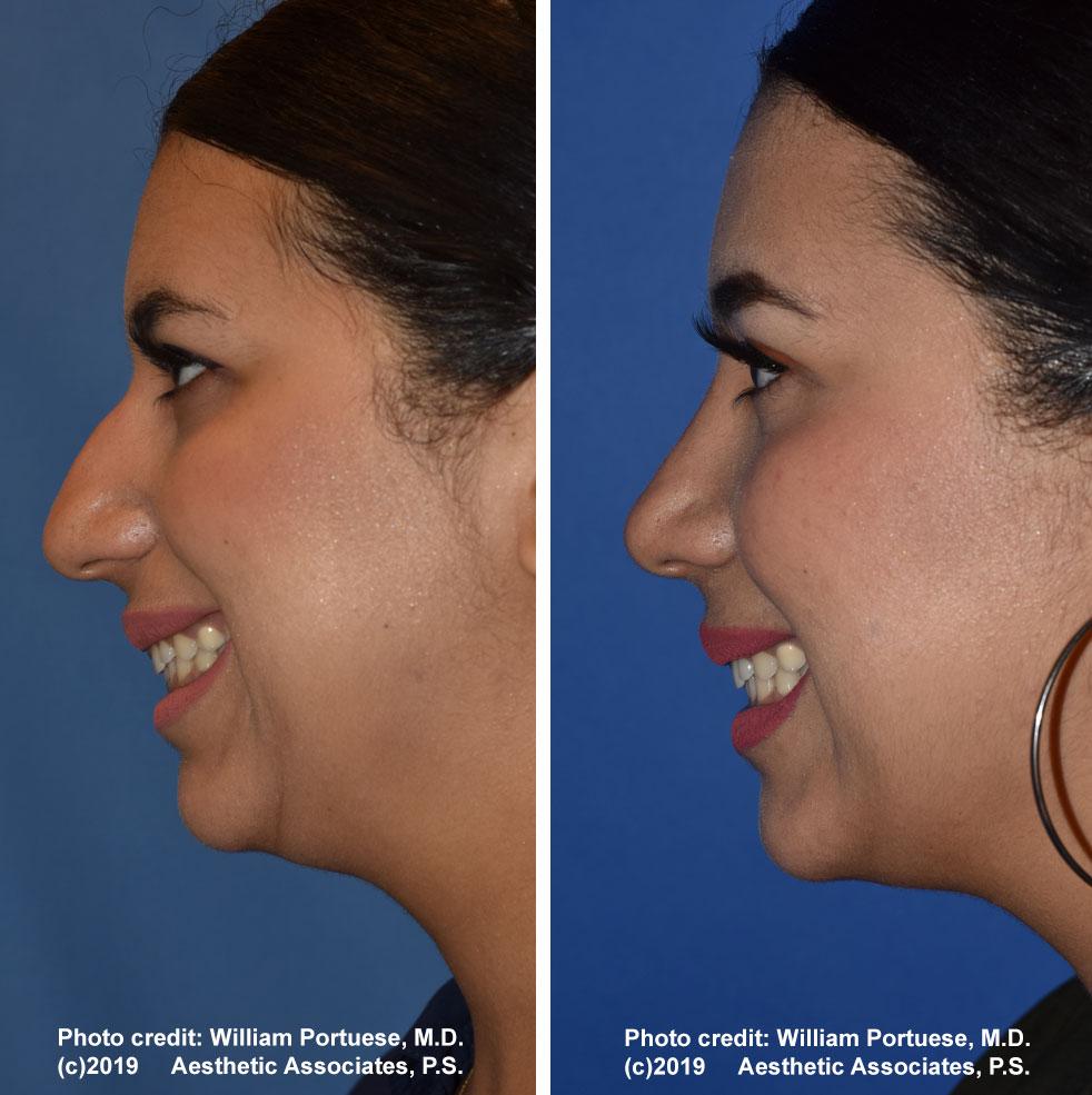 rhinoplasty-61719-14b