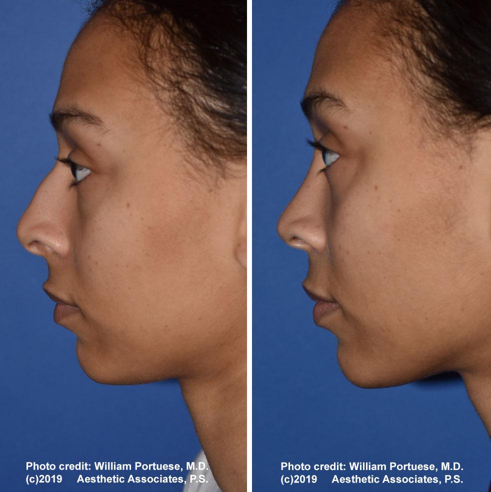 rhinoplasty-61719-15b