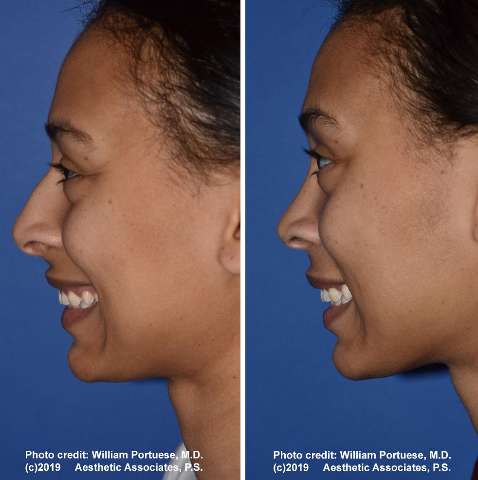 rhinoplasty-61719-15f