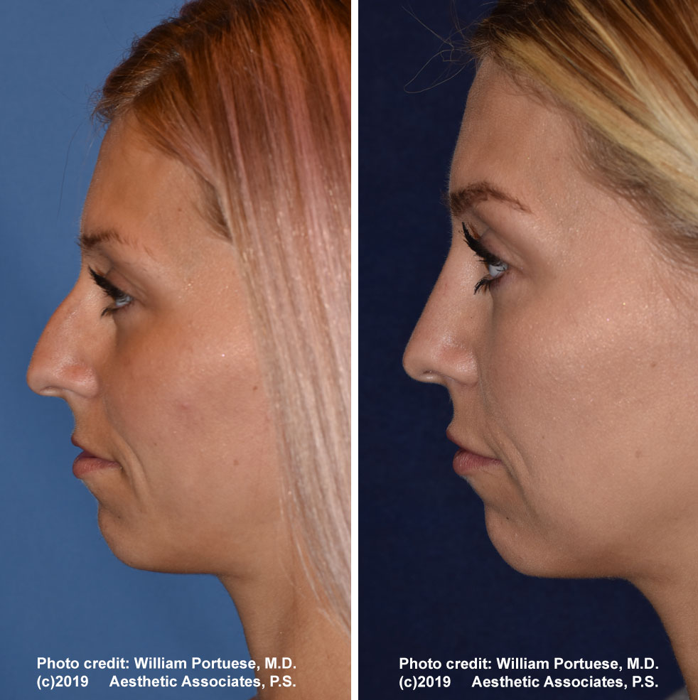 rhinoplasty-61719-16b