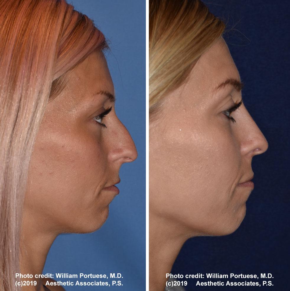 rhinoplasty-61719-16e