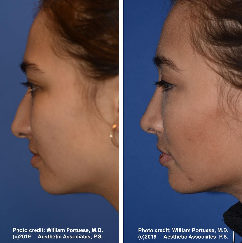 rhinoplasty-61719-1b