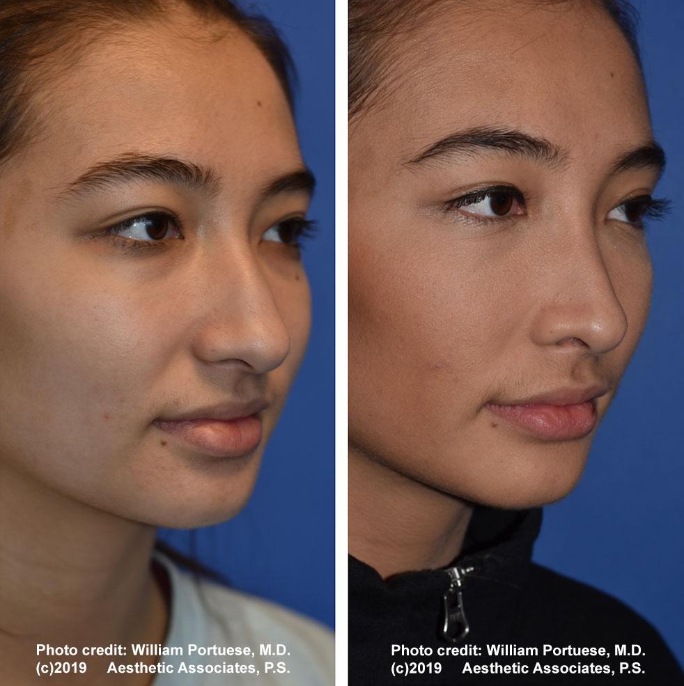 rhinoplasty-61719-1d