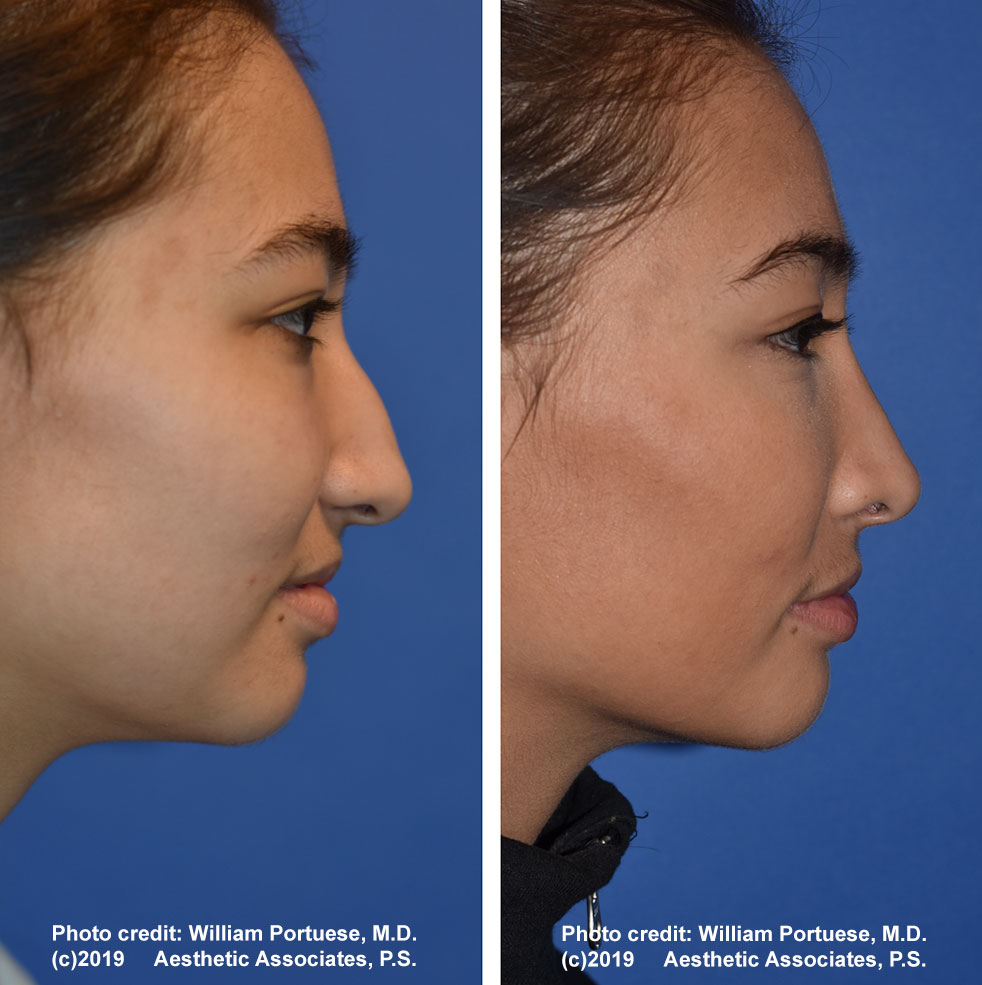 rhinoplasty-61719-1e