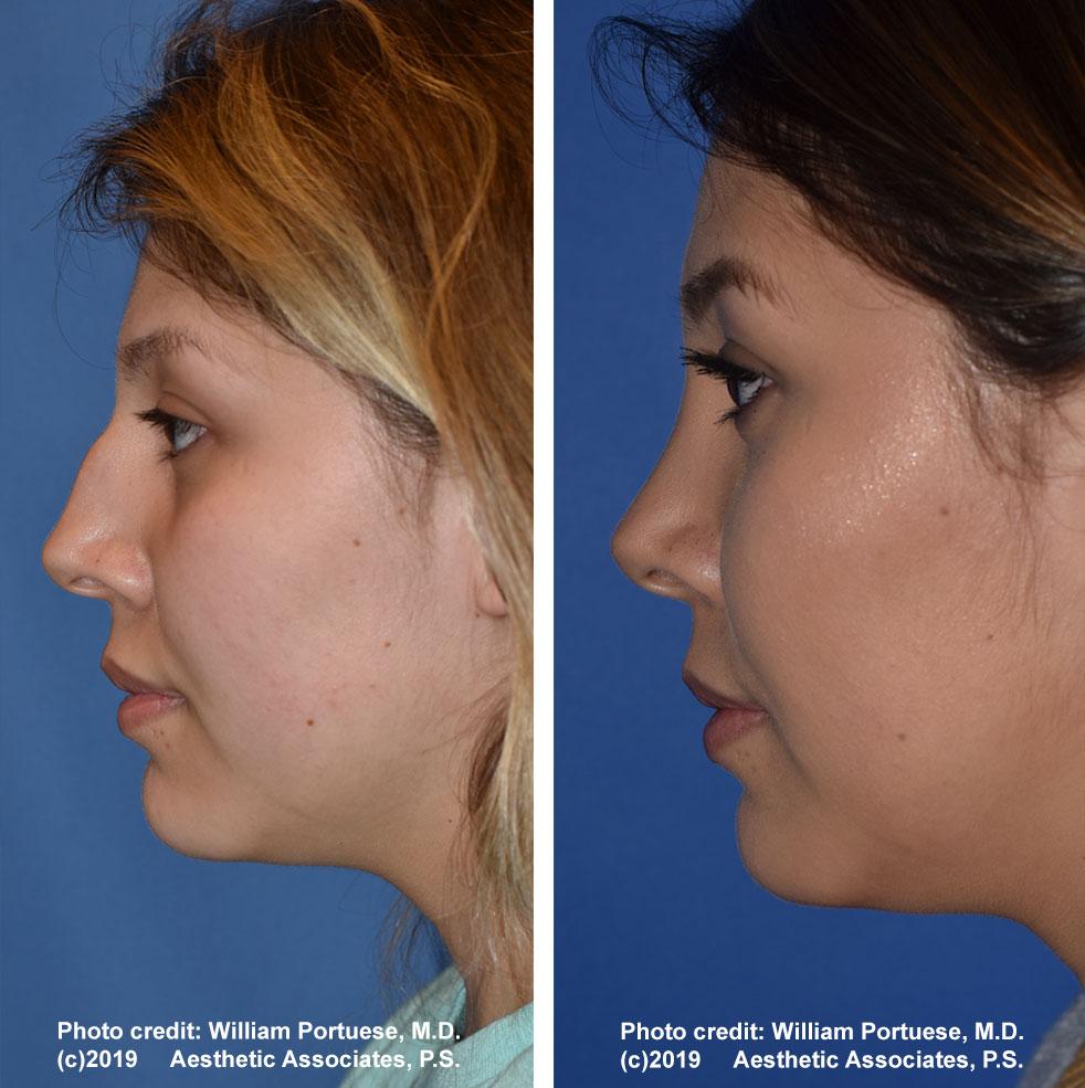 rhinoplasty-61719-2b
