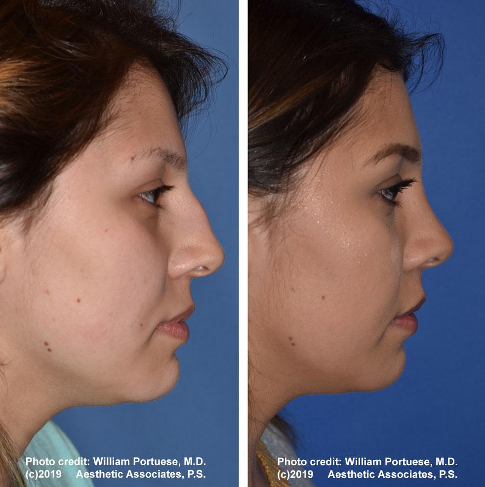 rhinoplasty-61719-2e