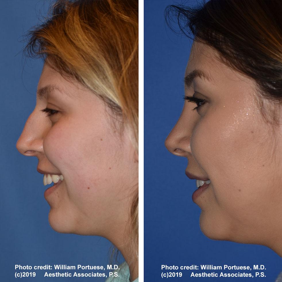 rhinoplasty-61719-2f