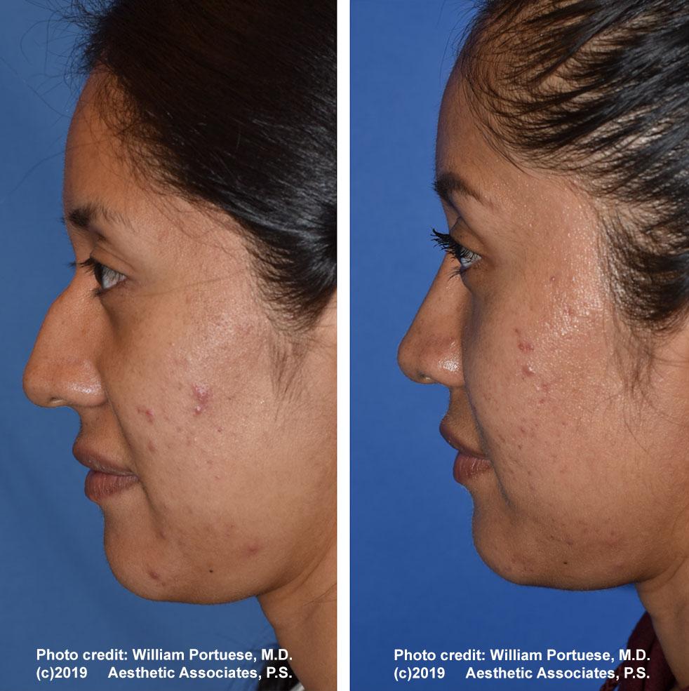 rhinoplasty-61719-3b