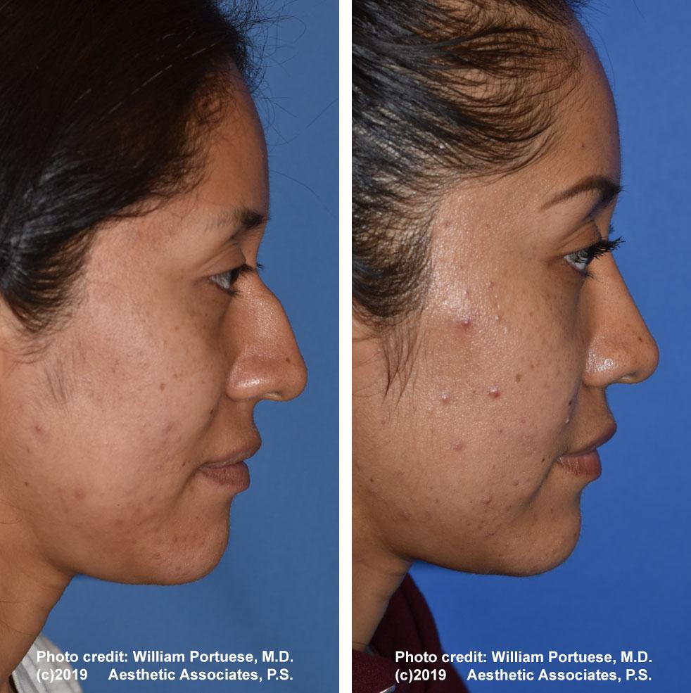 rhinoplasty-61719-3e