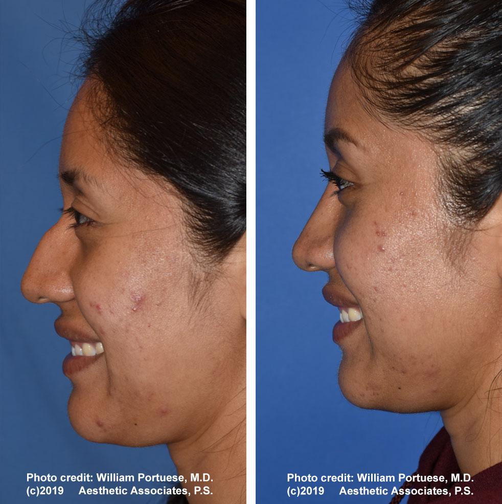 rhinoplasty-61719-3f