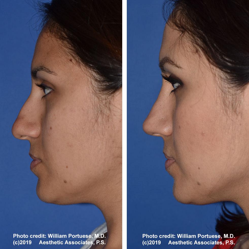 rhinoplasty-61719-4b