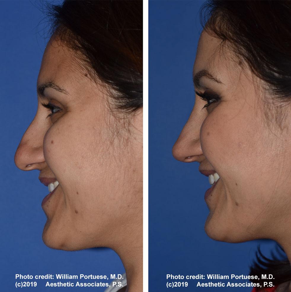 rhinoplasty-61719-4f