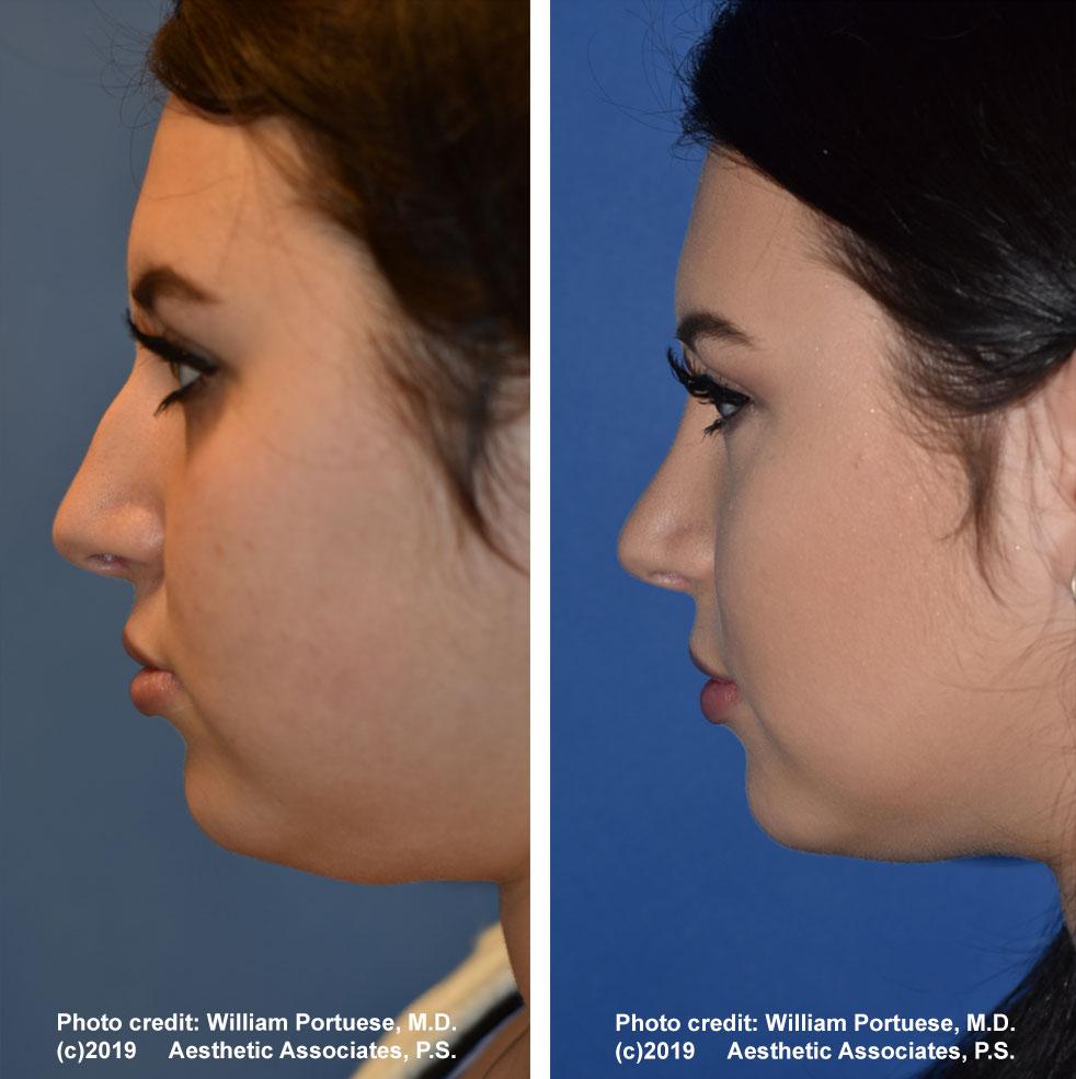 rhinoplasty-61719-5b