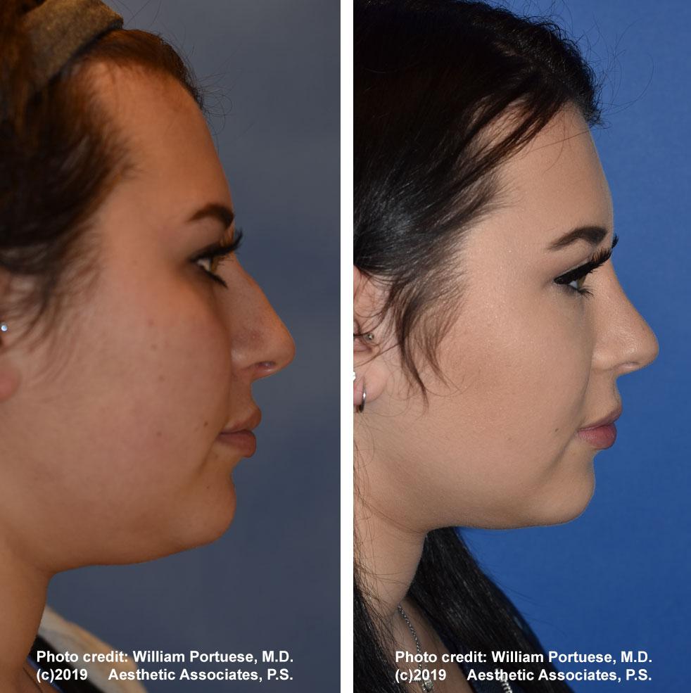 rhinoplasty-61719-5e