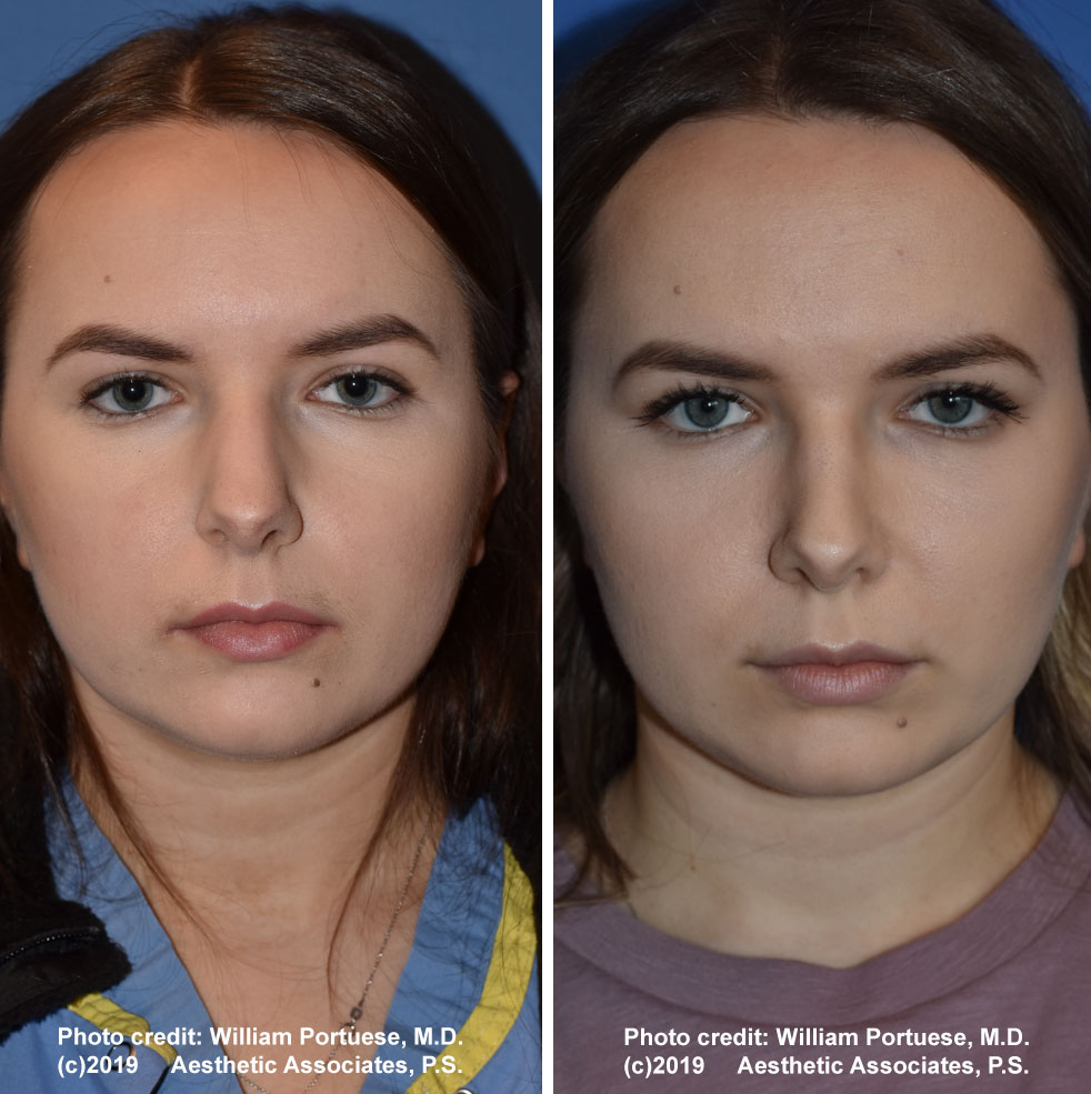 rhinoplasty-61719-7a