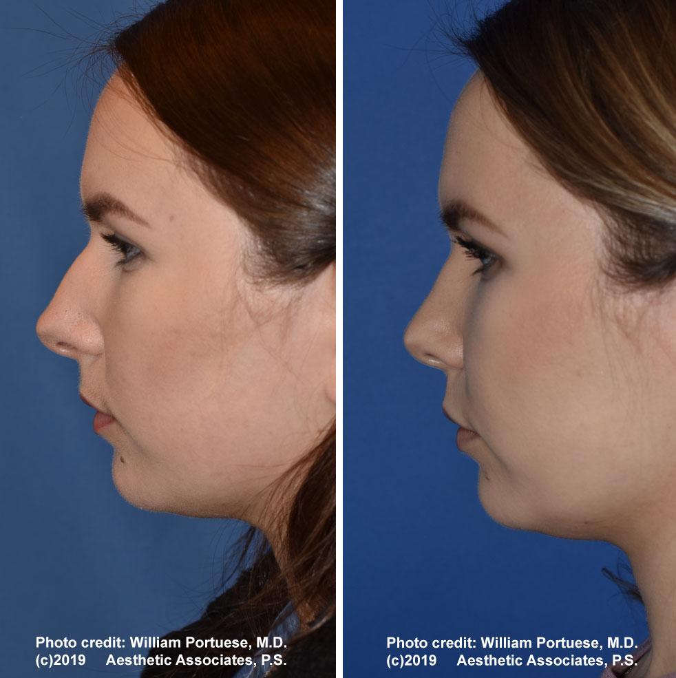 rhinoplasty-61719-7b
