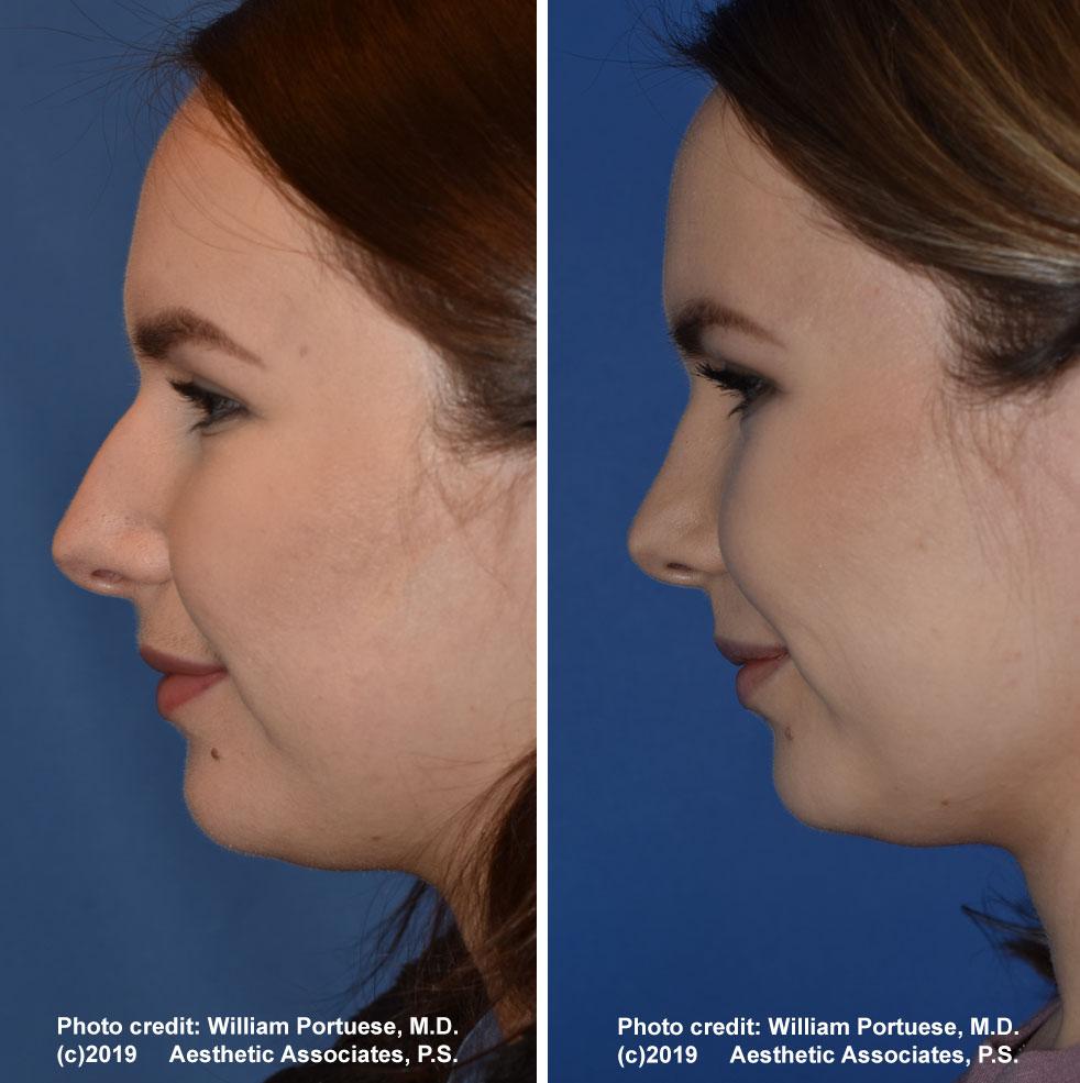rhinoplasty-61719-7f